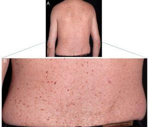 اختلالات پوستی ایجاد شده در TTD (ایجاد خشکی و لکه)