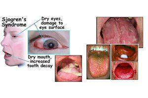 تحت تاثیر قرار گرفتن چشم ها و غدد بزاقی در سندروم شوگرن